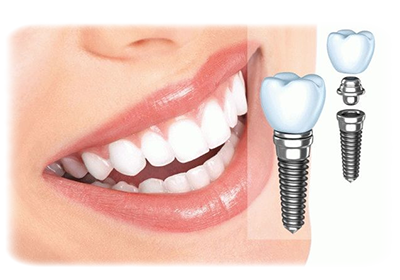 имплатнация зубов
